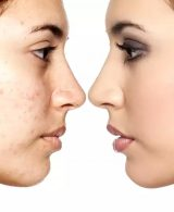 BLEMISHES: HOW TO COVER THEM USING MAKEUP?