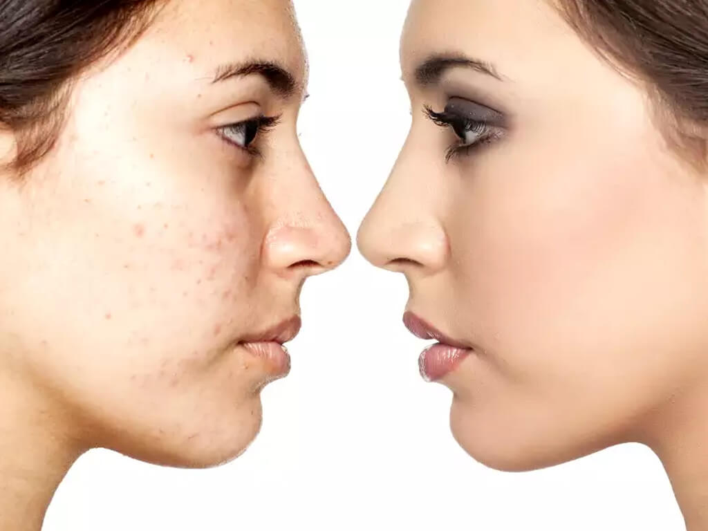 BLEMISHES: HOW TO COVER THEM USING MAKEUP? blemishes - BLEMISHES HOW TO COVER THEM USING MAKEUP Thumbnail - BLEMISHES: HOW TO COVER THEM USING MAKEUP?