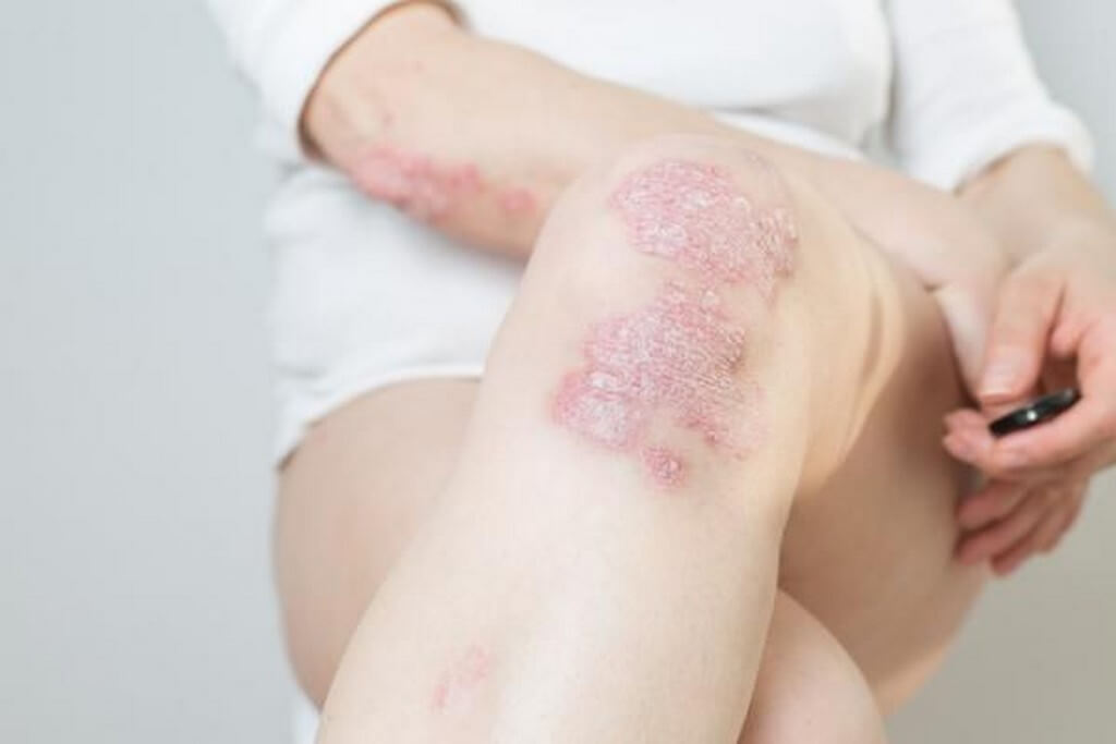 Types of psoriasis: Chronic skin condition types of psoriasis - Types of psoriasis Chronic skin condition 2 - Types of psoriasis: Chronic skin condition