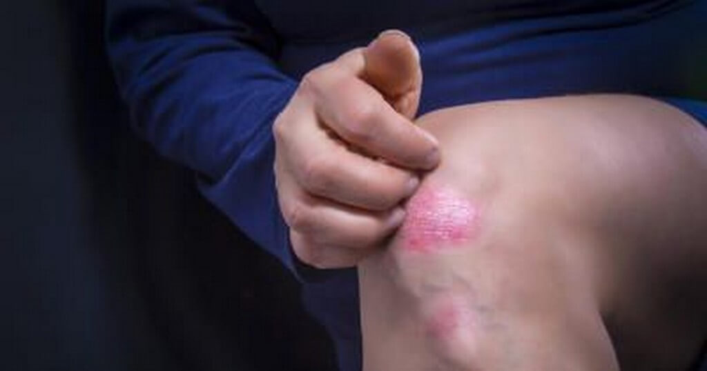 Types of psoriasis: Chronic skin condition types of psoriasis - Types of psoriasis Chronic skin condition 5 - Types of psoriasis: Chronic skin condition